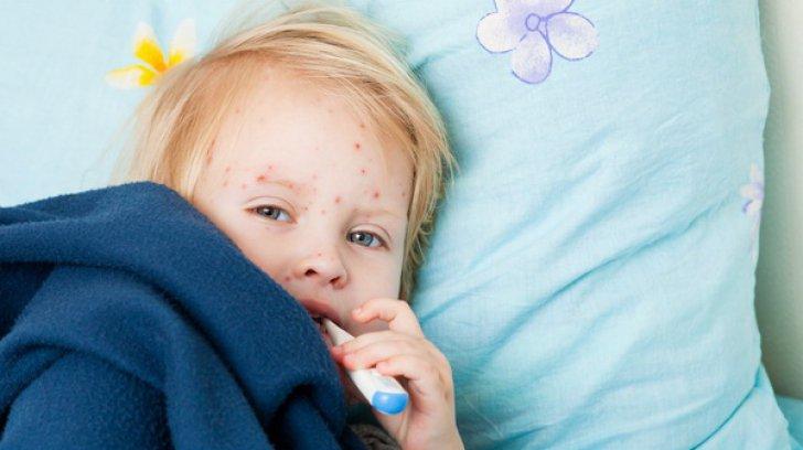 Rujeola A Făcut încă O Victimă O Fetiţă De 9 Ani A Murit Bilanţul