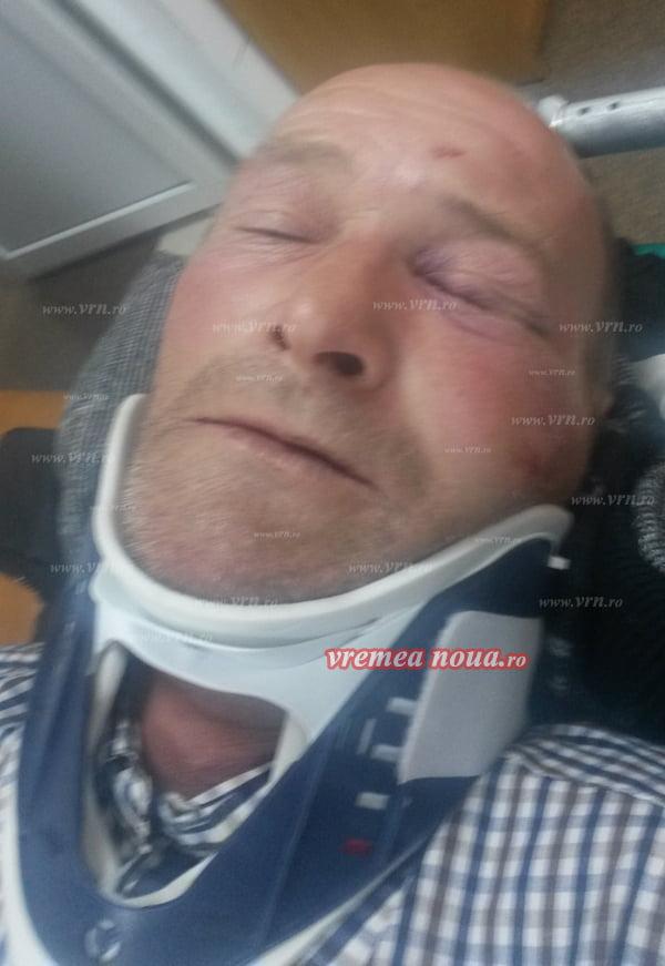 Politia Zorleni s-a autosesizat în cazul angajatului Primãriei care a bãtut un consãtean pânã l-a bãgat în spital!