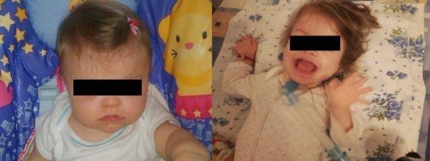 Sfasietor! Cat costa o viata de copil? O fetita din Iasi are nevoie de 45.000 de euro pentru tratament! O mana de medici o pot salva